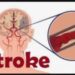 3 Obat Untuk Menyembuhkan Penyakit Stroke