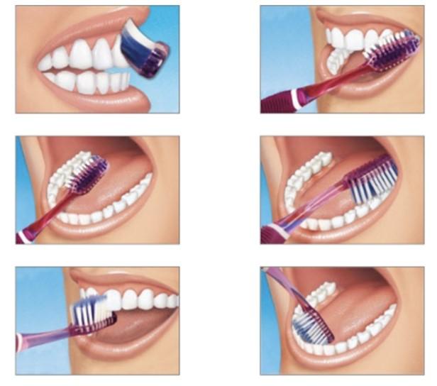 urutan menggosok gigi yang benar